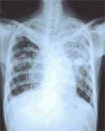 Chest x-ray of a tuberculosis patient.